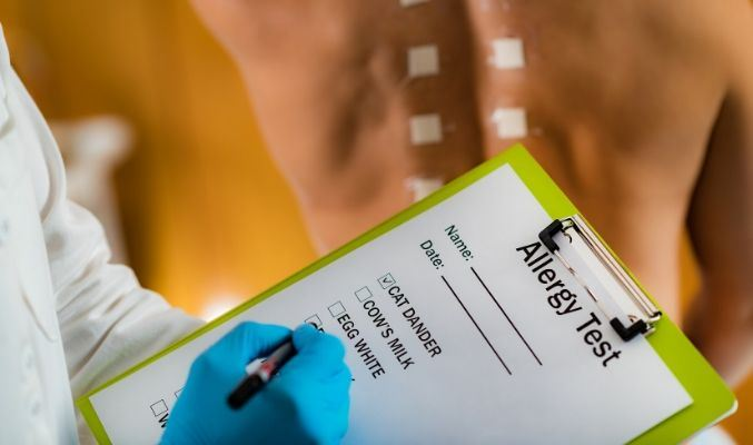 Allergy Screening Test